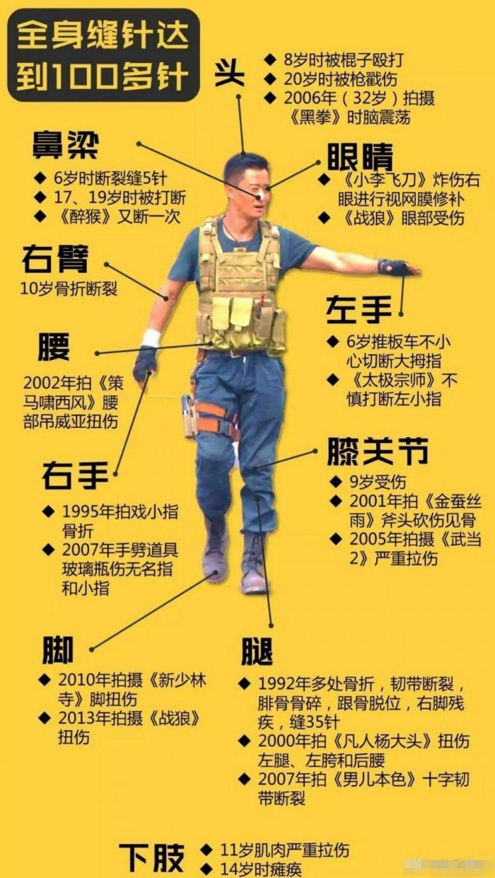网友制作吴京受伤汇总图 全身缝针高达100多针